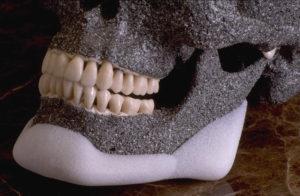 Индивидуальные имплантаты челюстно-лицевой области