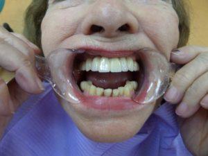 Протезирование верхней челюсти с опорой на импланты