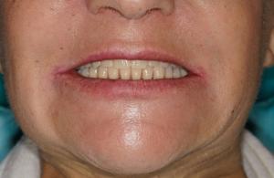 Условной съемное протезирвоание челюстей