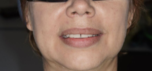 Тотальное протезирование челюстей
