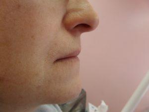 Двучелюстное протезирование зубов с опорой на импланты