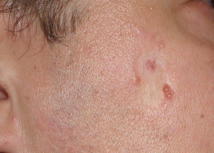 Удаление базалиомы кожи щеки