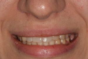 Протезирование на имплантатах верхнюю челюсть временными коронками