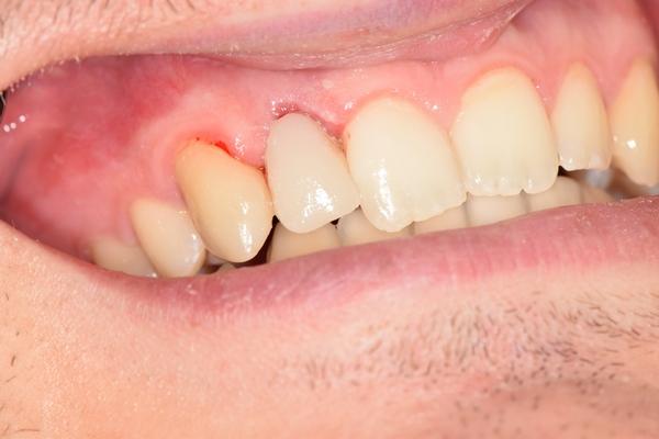 Спасение обреченного зуба