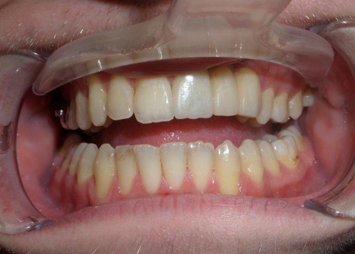 Протезирование у пациентов с расщелиной верхней губы (циркониевые конструкции )