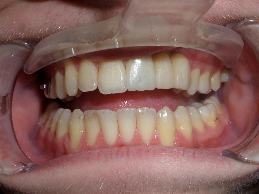Протезирование у пациентов с расщелиной верхней губы